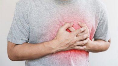 صورة طبيب يحدد أسباب السكتة القلبية المبكرة