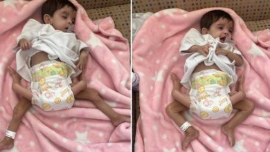 صورة بالصور: فريق طبي سعودي ينجح في عملية جراحية لفصل توأم طفيلي يمني بالرياض .