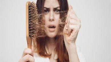صورة 6 أسباب غير متوقعة لتساقط الشعر