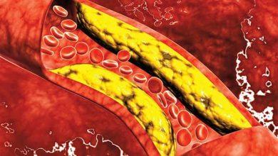 صورة ما يجب معرفته عن ارتفاع مستوى الكوليسترول؟